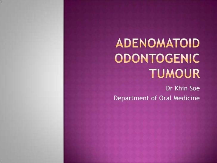 Adenomatoid odontogenic tumour and others