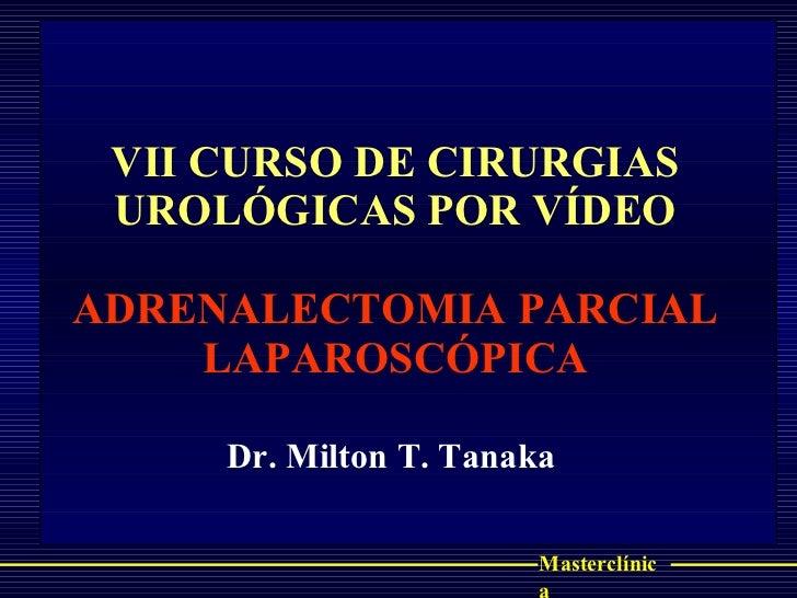 VII CURSO DE CIRURGIAS UROLÓGICAS POR VÍDEO ADRENALECTOMIA PARCIAL LAPAROSCÓPICA Dr. Milton T. Tanaka