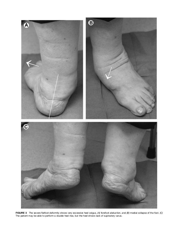 intoeing and foot pain in adults