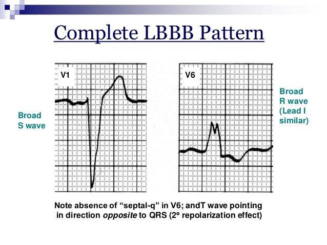 Rsr Pattern Ecg Pattern v1 v6 Rsr' Complex