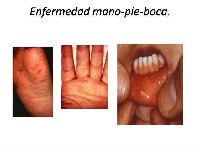 Que curar el magullado del dedo y la uña
