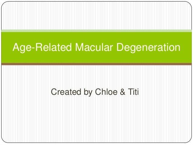 Age related macular degeneration tt&chole final