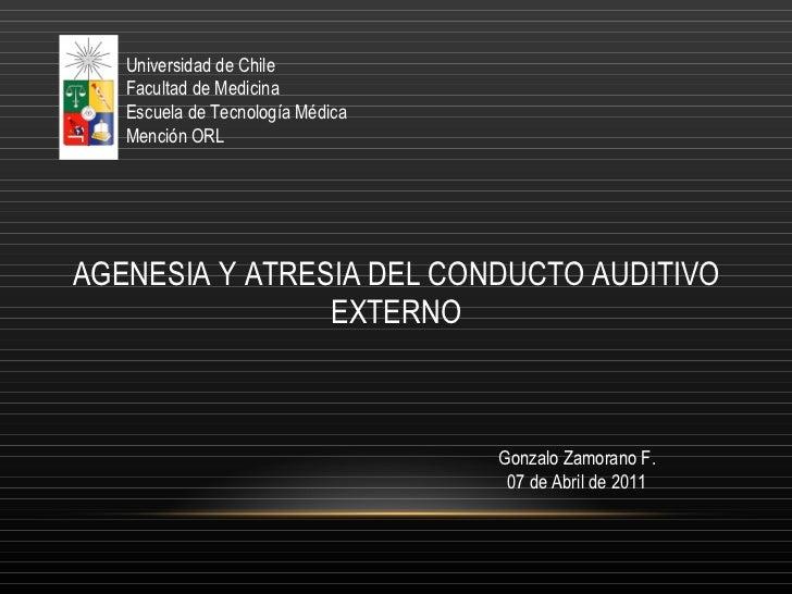 Agenesia y atresia del conducto auditivo externo