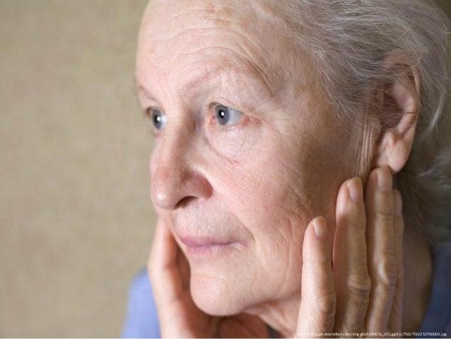 Aging Beautifully Part 1: Osteoarthritis