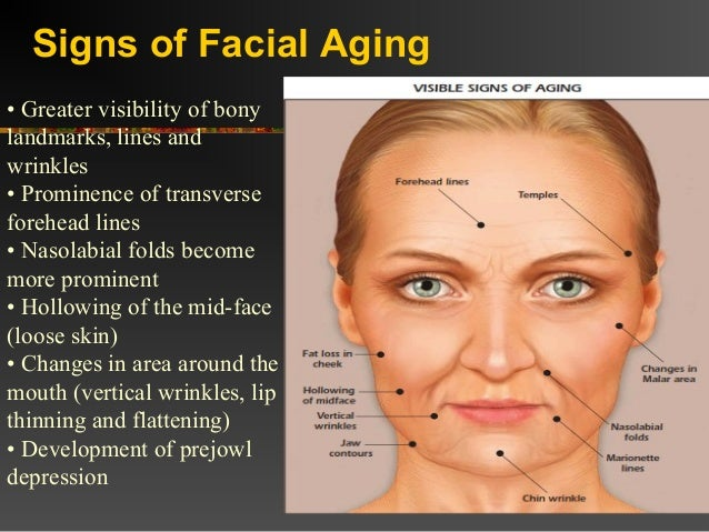 Aging Face Ppt. July 5th Zodiac Signs Of Stroke. We Heart It Signs Of Stroke. This Way Signs Of Stroke. Denver Broncos Signs. Light Face Dark Signs. Lung Cancer Signs Of Stroke. Watercolor Signs. 16 December Signs Of Stroke