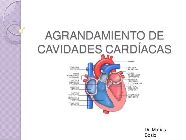 AGRANDAMIENTO DE CAVIDADES CARDÍACAS  Dr. Matías Bosio