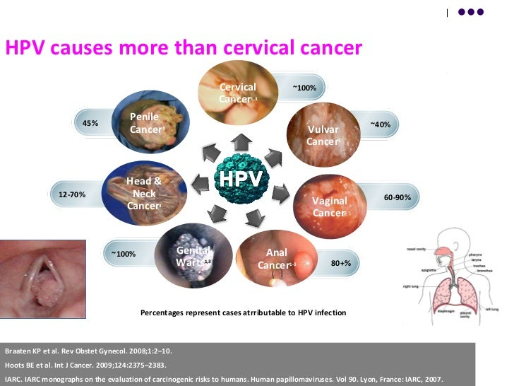 cancer cervix burden of hpv 26 728