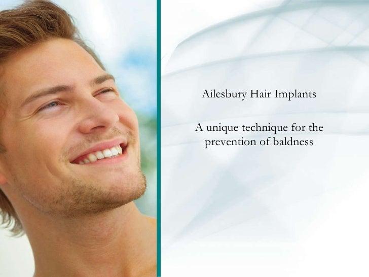Ailesbury Hair Implants