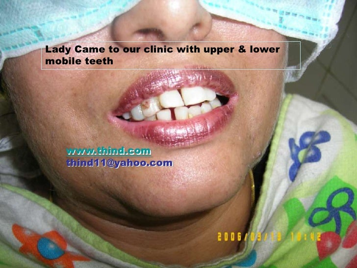 BRIDGE TREATMENT<br />Lady Came to our clinic with upper & lower mobile teeth<br />www.thind.com	                  thind11...