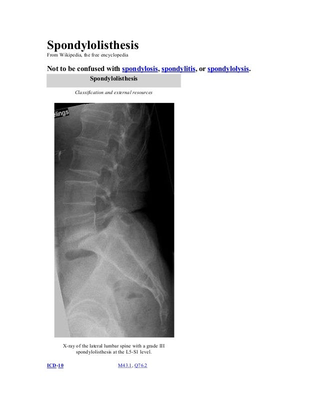 Spondylolisthesis From Wikipedia, the free encyclopedia  Not to be confused with spondylosis, spondylitis, or spondylolysi...
