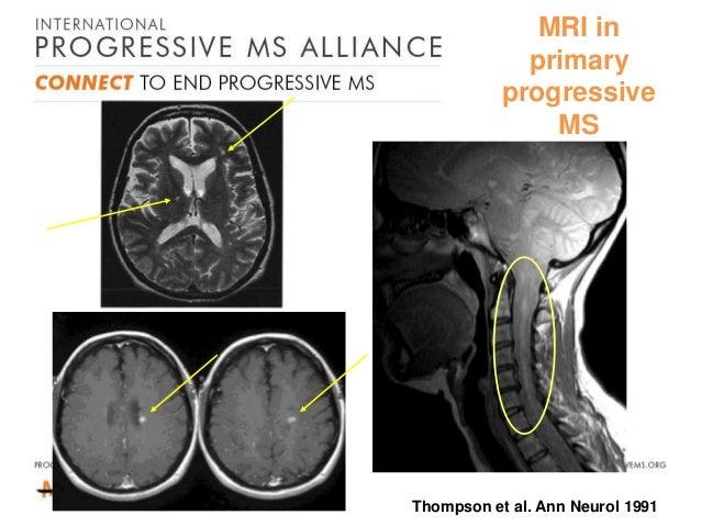 primary progressive ms and steroid treatment