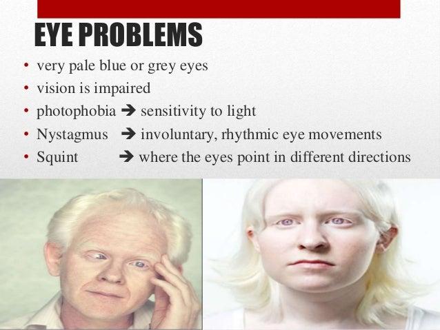 Blonde hair brown eyes pale skin
