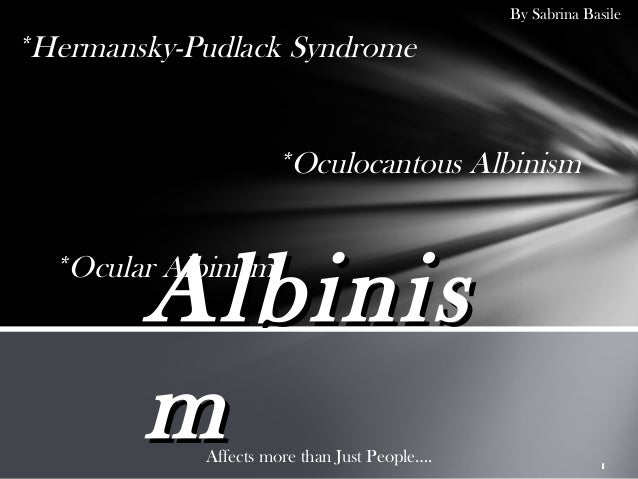 By Sabrina Basile*Hermansky-Pudlack Syndrome                      *Oculocantous Albinism        Albinis  *Ocular Albinism ...