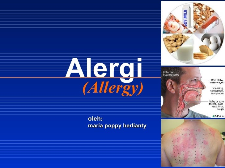 (Allergy) Alergi oleh : maria poppy herlianty