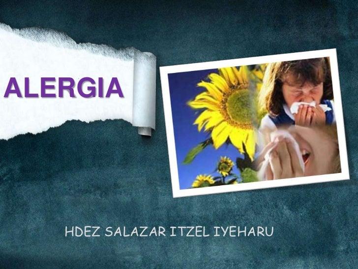 Alergia itzel 10D