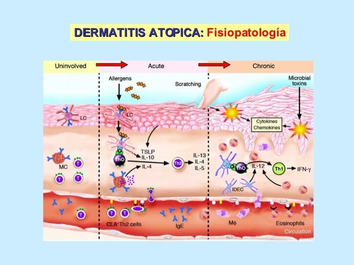 La crema la celidonia mayor a la psoriasis