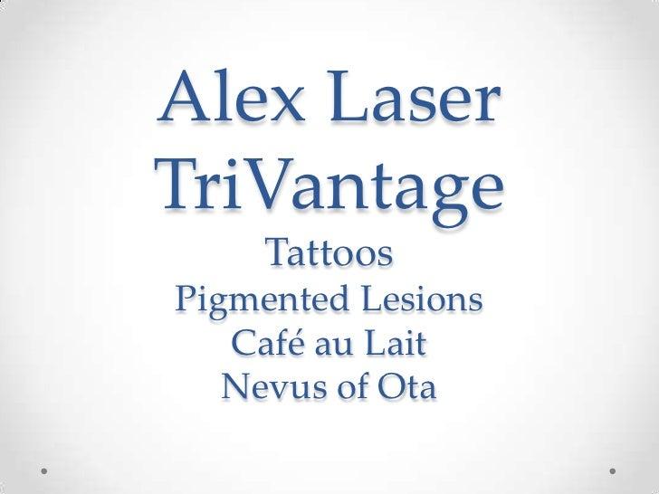 Alex LaserTriVantageTattoosPigmented LesionsCafé au LaitNevus of Ota<br />