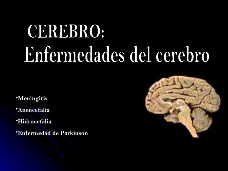 CEREBRO: Enfermedades del cerebro <ul><li>Meningitis   </li></ul><ul><li>Anencefalia  </li></ul><ul><li>Hidrocefalia  </li...