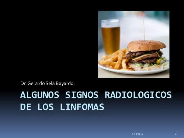 ALGUNOS SIGNOS RADIOLOGICOS DE LOS LINFOMAS Dr.Gerardo Sela Bayardo. 7/15/2013 1