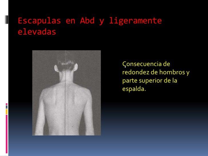 Lfk a sheynoy a la hernia de la columna vertebral del vídeo