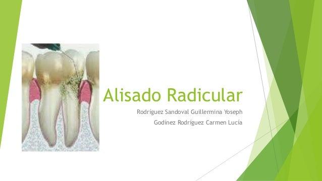 Alisado Radicular Rodríguez Sandoval Guillermina Yoseph Godínez Rodríguez Carmen Lucía