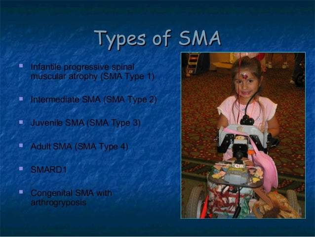 spinal muscular atrophy Please see the document 'spinal muscular atrophy – an overview' for a brief  description of the different types adults are usually diagnosed.