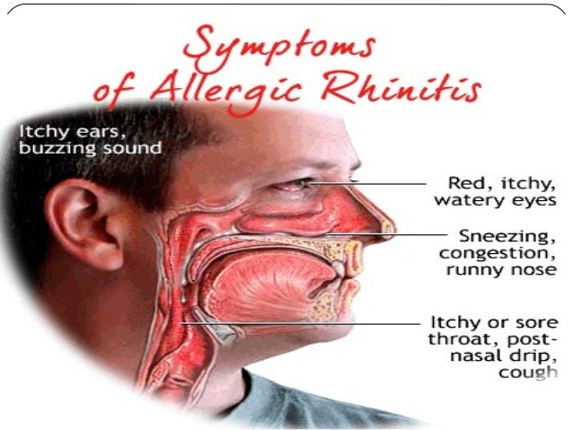 seasonal allergic rhinitis But, people with seasonal allergic rhinitis do not have to have a fever and do not have to be exposed to hay to develop this condition it is an allergic reaction to pollen from trees, grasses and weeds.