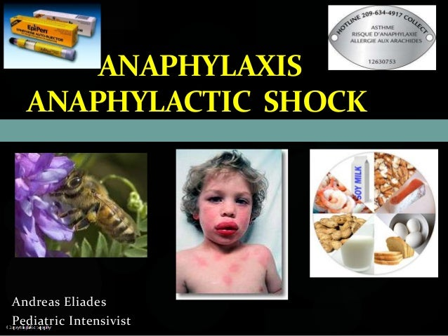 Allergic shock