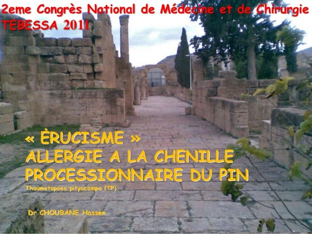 2eme Congrès National de Médecine et de Chirurgie TEBESSA 2011  « ĖRUCISME »  ALLERGIE A LA CHENILLE PROCESSIONNAIRE DU PI...