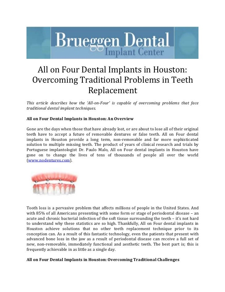 All on Four Dental Implants in Houston:   Overcoming Traditional Problems in Teeth                 ReplacementThis article...