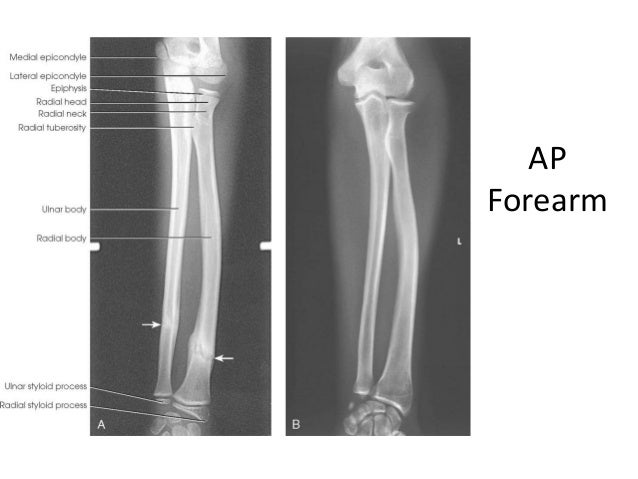 Lateral ankle x ray anatomy