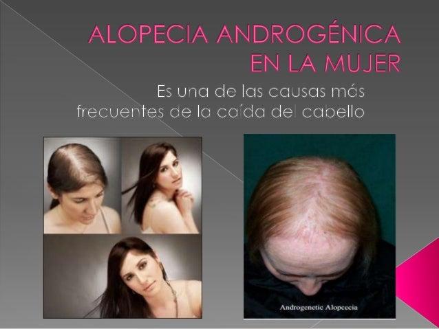 La alopecia en 25 años de la foto