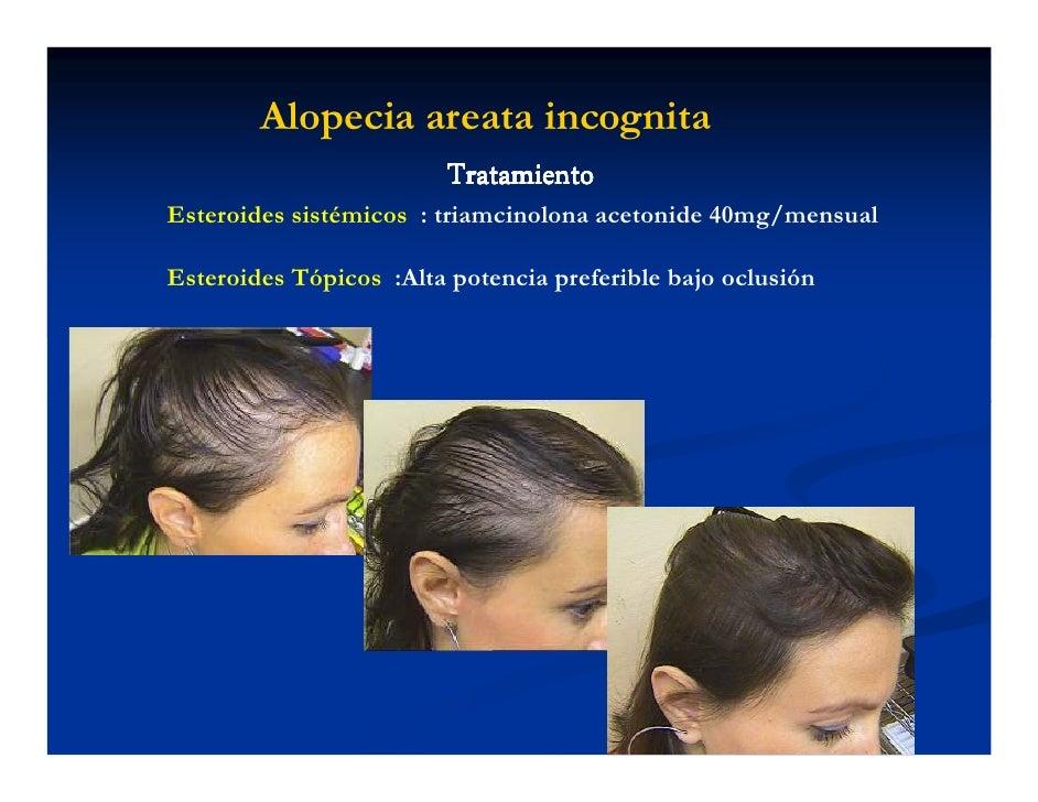 El aloe el medio de la caída de los cabello