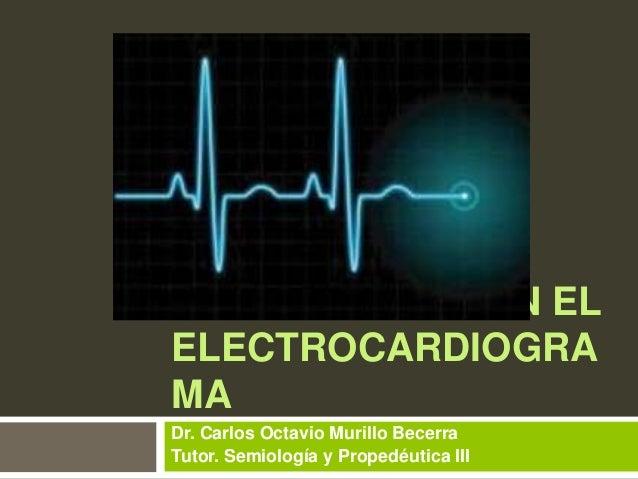 Alteraciones en el electrocardiograma. Infarto, Hipertrofia, Pericarditis y Arritmias.