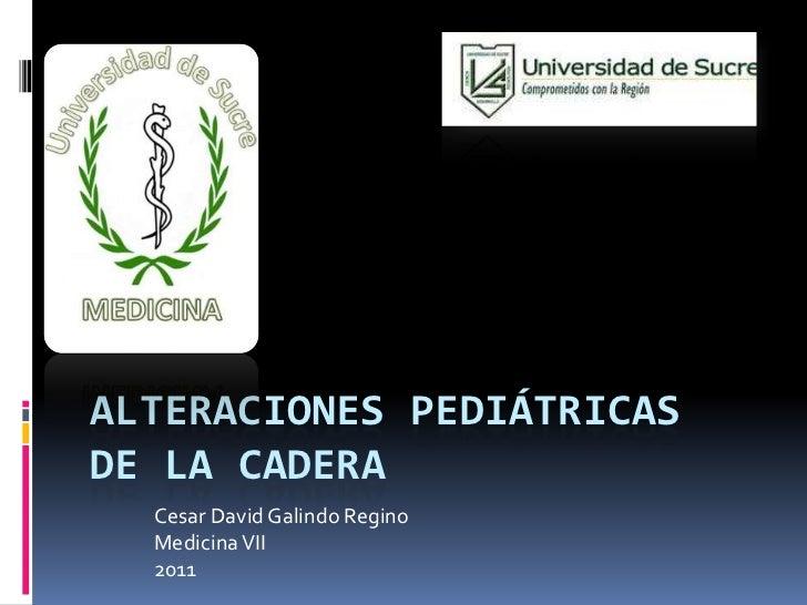 Alteraciones pediátricas  de la cadera<br />Cesar David Galindo Regino<br />Medicina VII<br />2011<br />