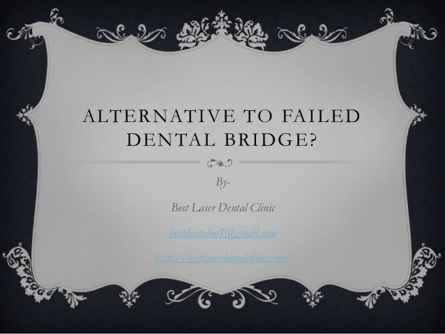 ALTERNATIVE TO FAILED DENTAL BRIDGE? By- Best Laser Dental Clinic bestdentalno1@gmail.com http://bestlaserdentalclinic.com/
