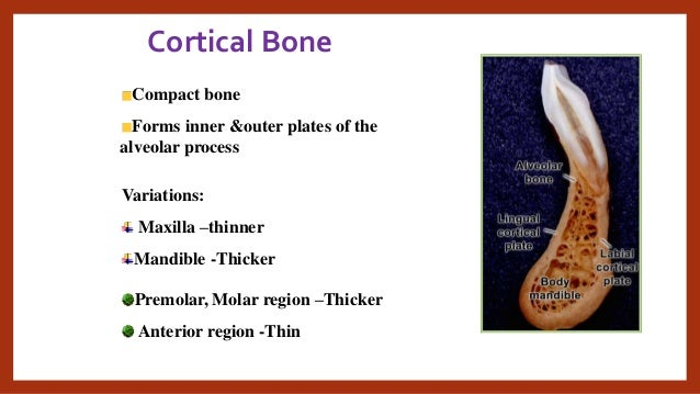types of cervical epidural steroid injections