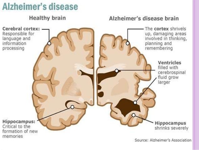 research papers for alzheimers disease Journal of alzheimers disease and parkinsonism discusses the latest research innovations and important developments in this field.