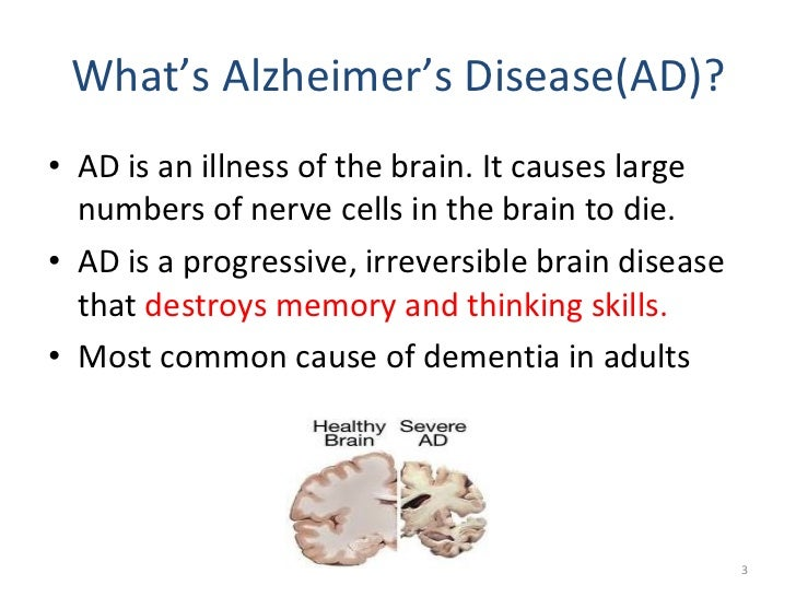 alzheimers disease and research ethical concerns essay Public concerns about alzheimer's disease understanding dementia research research understanding dementia research participating in research.
