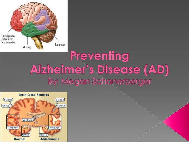 Preventing Alzheimer's Disease (AD)By: Megan Schanerberger<br />