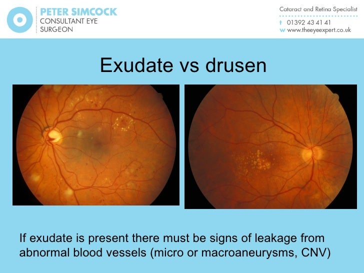 Hard exudates vs drusen a macular pathology and oct update for