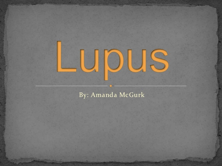By: Amanda McGurk<br />Lupus<br />