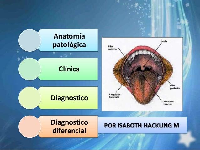 Anatomíapatológica  ClínicaDiagnosticoDiagnostico   POR ISABOTH HACKLING Mdiferencial