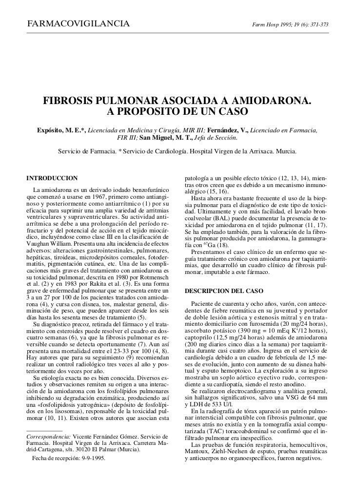 Amiodarona y fibrosis pulmonar 371 373