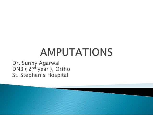 Dr. Sunny Agarwal DNB ( 2nd year ), Ortho St. Stephen's Hospital