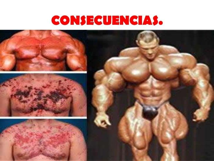 boldenona esteroide anabolico