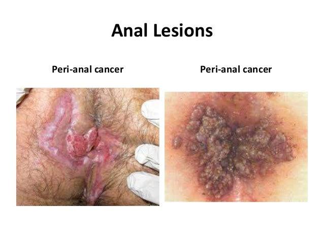 Anal bleeding causes