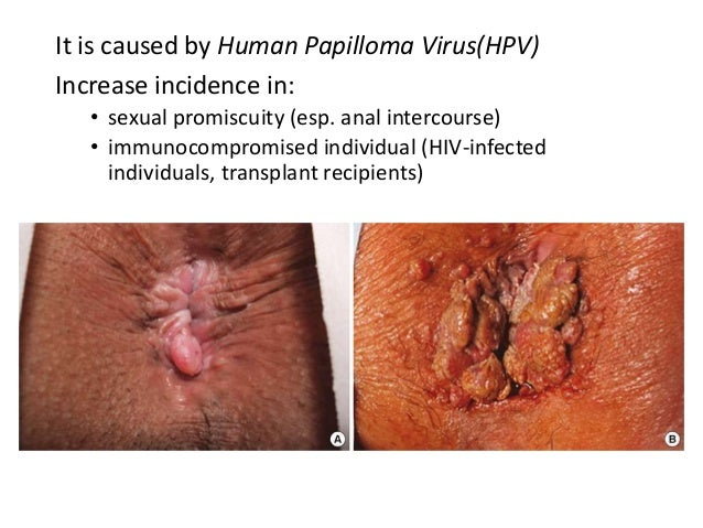 Anal fissure and hiv