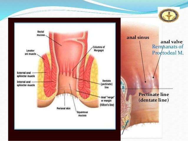 Superficial anal fistula