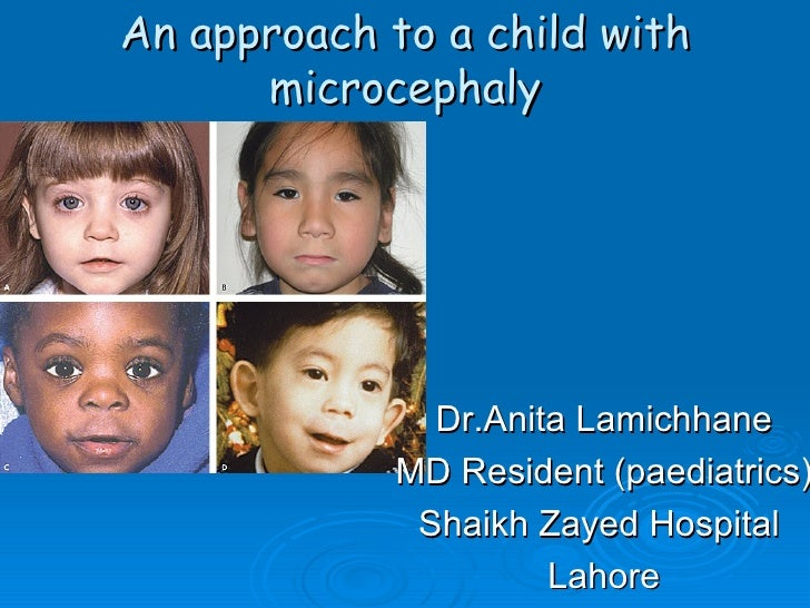 An approach to a child with      microcephaly              Dr.Anita Lamichhane            MD Resident (paediatrics)       ...